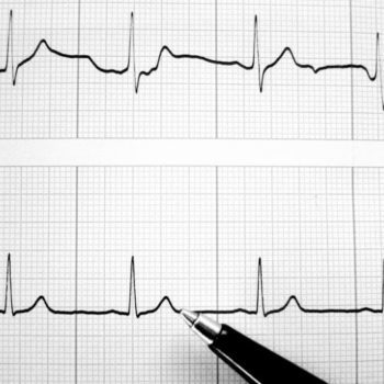 ECG-data